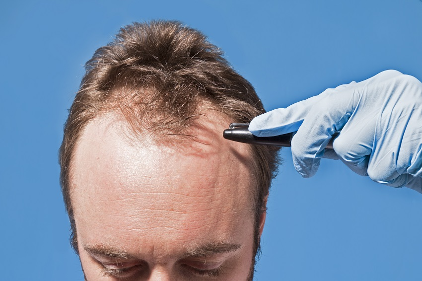 How many times can you have hair transplant?